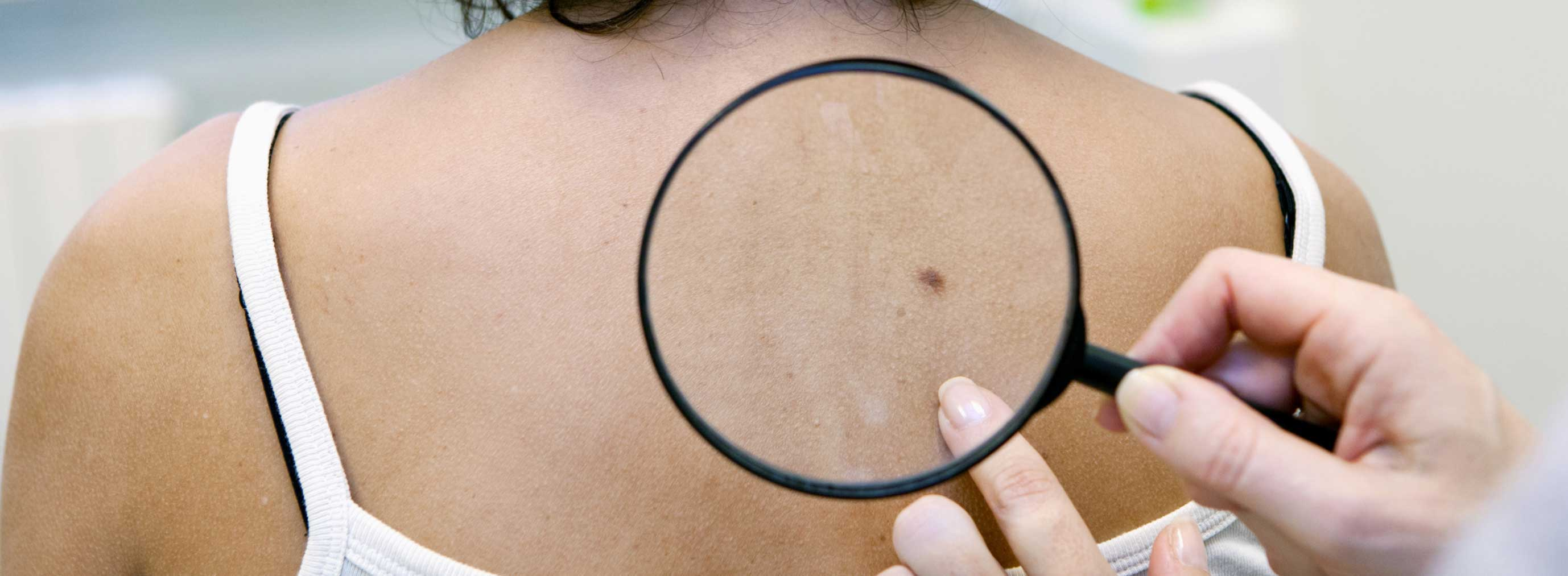 Skin cancer clinic. We can check your moles and skin for cancer at our Brisbane medical centre.
